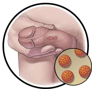 زگیل تناسلی ویروس اچ پی وی HPV در مردان تصویر کوچک