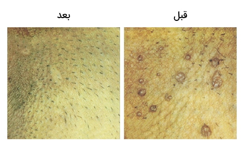 تصویر 1: عکس زگیل تناسلی بالای آلت قبل و بعد از عمل با لیزر