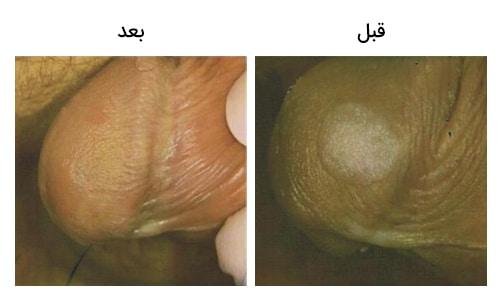 تصویر 10: عکس درمان کرایو تراپی زگیل تناسلی بر روی آلت مردان