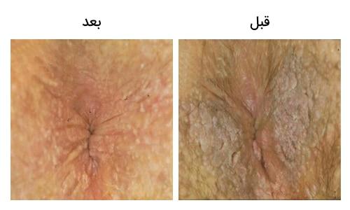 تصویر 11: عکس زگیل مقعد در زنان درمان با لیزر