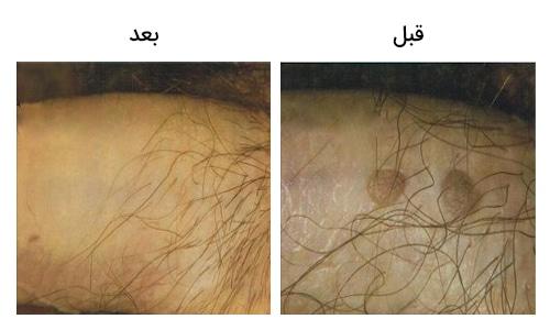 تصویر12: عکس زگیل تناسلی در مردان بالای آلت قبل و بعد از درمان با لیزر