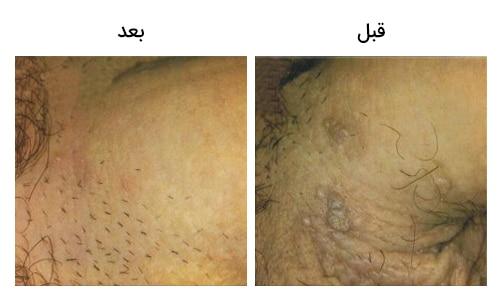 تصویر13: عکس درمان زگیل تناسلی در کنار آلت مردان قبل و بعد عمل با کرایو تراپی