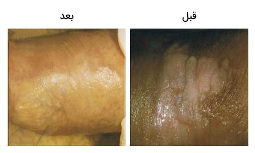 تصویر 14: عکس درمان زگیل تناسلی در مردان با لیزر