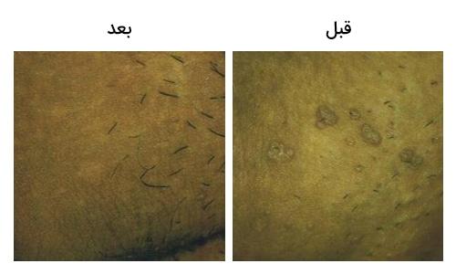 تصویر 15: عکس درمان زگیل تناسلی در آلت مرد با لیزر