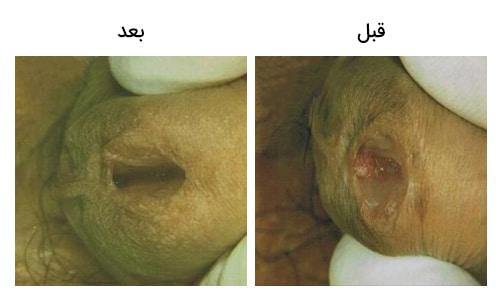 تصویر 16: عکس درمان زگیل تناسلی داخل مجاری آلت مردانه با لیزر