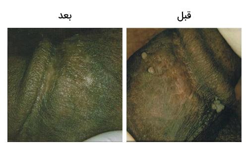 تصویر 19: عکس زگیل های تناسلی آلت مرد درمان با کرایو تراپی یا انجماد