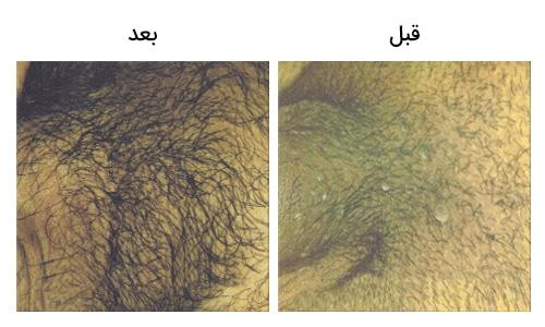 تصویر 2: شکل و عکس زگیل تناسلی مردان بالای آلت قبل و بعد از درمان با لیزر