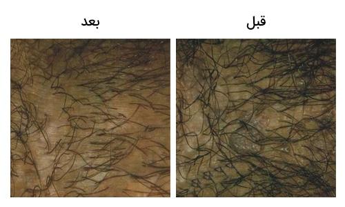 تصویر 21: عکس درمان با کرایو زگیل تناسلی مردان