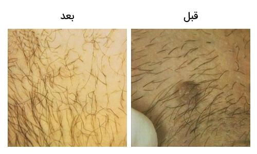 تصویر 22: عکس زگیل تناسلی در مردان و درمان با لیزر