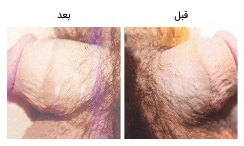 تصویر 23: عکس زگیل تناسلی در مردان کرایو درمانی
