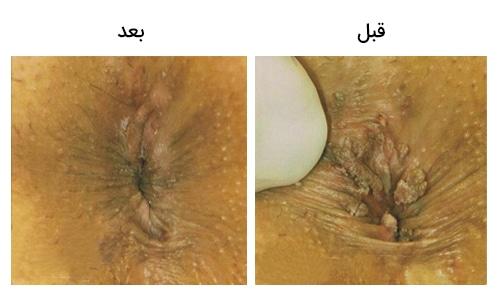 تصویر 24: عکس زگیل مقعد در زنان درمان با کرایو تراپی و فریز