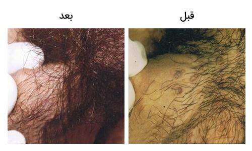 تصویر 25: عکس درمان زگیل تناسلی بر روی آلت با کرایو تراپی