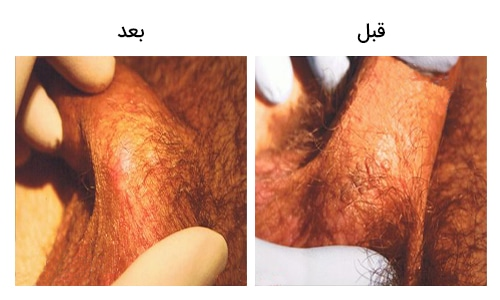 تصویر 26: عکس زگیل تناسلی در مردان درمان با کرایو تراپی و فریز کردن
