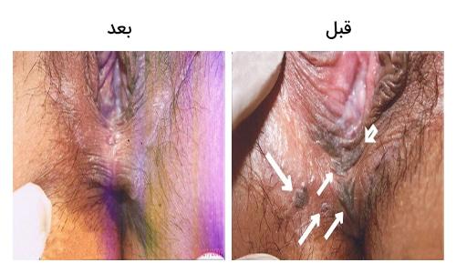 تصویر 28: عکس زگیل تناسلی در زنان درمان با لیزر