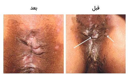 تصویر 29: عکس زگیل مقعد درمان با کرایو