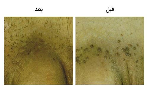 تصویر 3: عکس زگیل تناسلی مردان بالای آلت درمان با لیزر