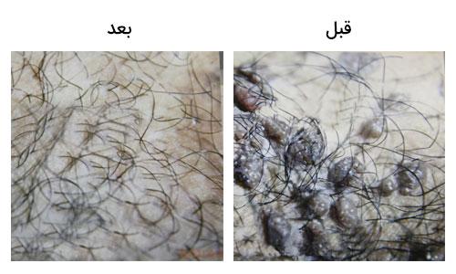 تصویر 30 : عکس زگیل تناسلی در مردان درمان با لیزر