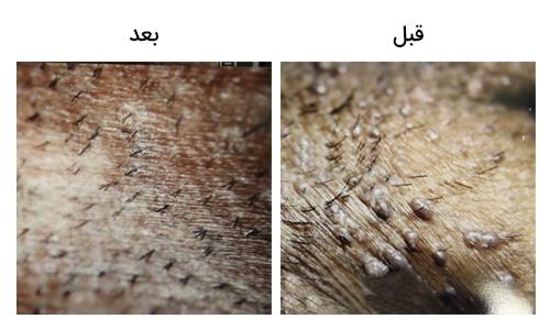 تصویر 31: عکس زگیل تناسلی در مردان درمان با لیزر