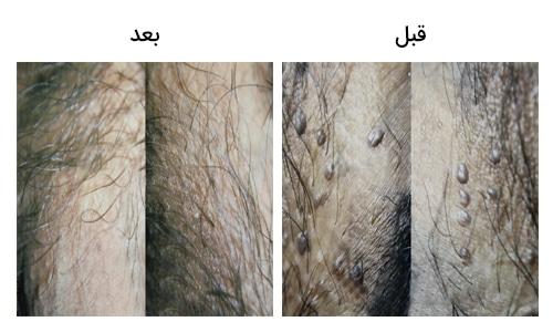 تصویر 32: عکس زگیل تناسلی بر روی آلت مرد قبل و بعد از عمل