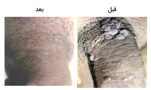تصویر 33: عکس درمان با لیزر زگیل تناسلی در مردان