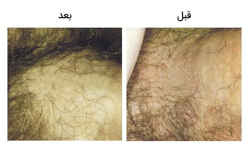 تصویر 4: عکس درمان با کرایو تراپی زگیل تناسلی در مردان