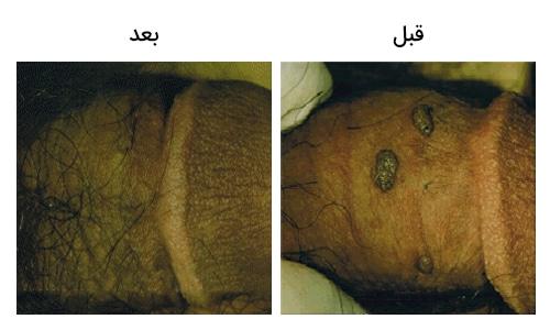 تصویر 5: عکس کرایو تراپی زگیل تناسلی بر روی آلت تناسلی مردان تصویر قبل و بعد عمل