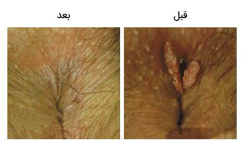 تصویر 6 : عکس زگیل مقعد درمان با لیزر