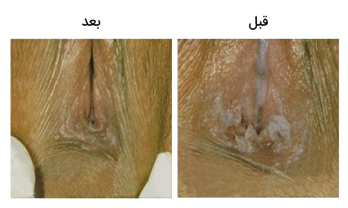 تصویر 7: عکس زگیل تناسلی در زنان درمان با لیزر