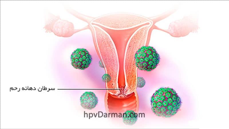 HPV و سرطان دهانه (گردن) رحم