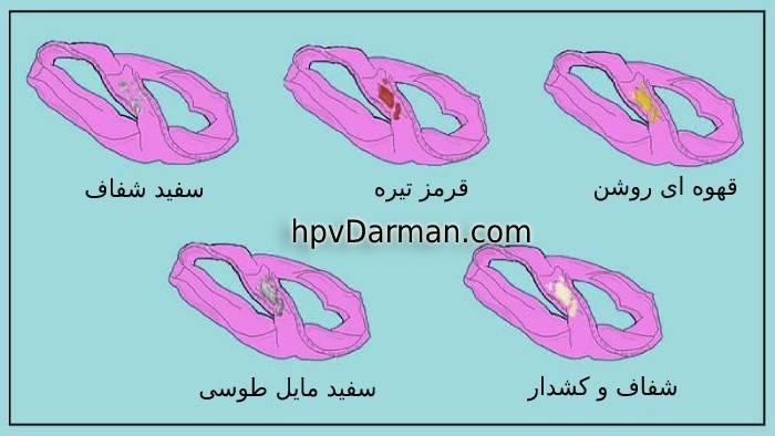 عکس انواع ترشحات واژن