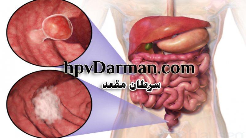عوامل سرطان مقعد ،دلیل خونریزی، علائم و روش های جلوگیری