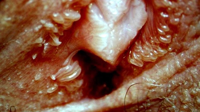 وستیبولار پاپیلوماتوز چه شکلی است