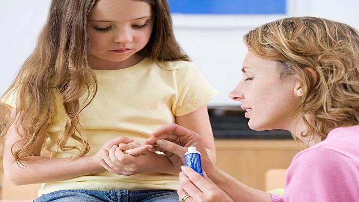 درمان خانگی زگیل تناسلی