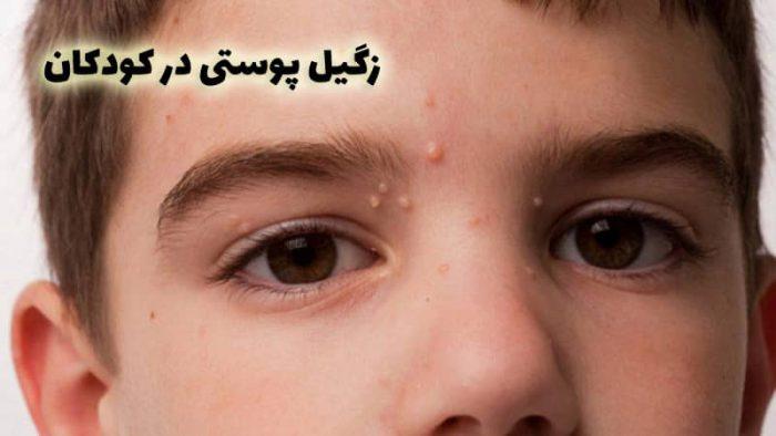عکس زگیل در کودکان