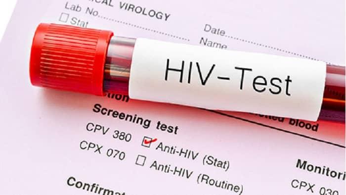 آزمایش یا تست ایدز
