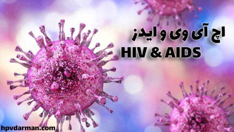 ویروس اچ آی وی و ایدز