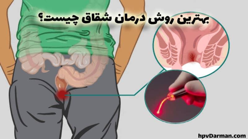 درمان شقاق مقعدی با لیزر