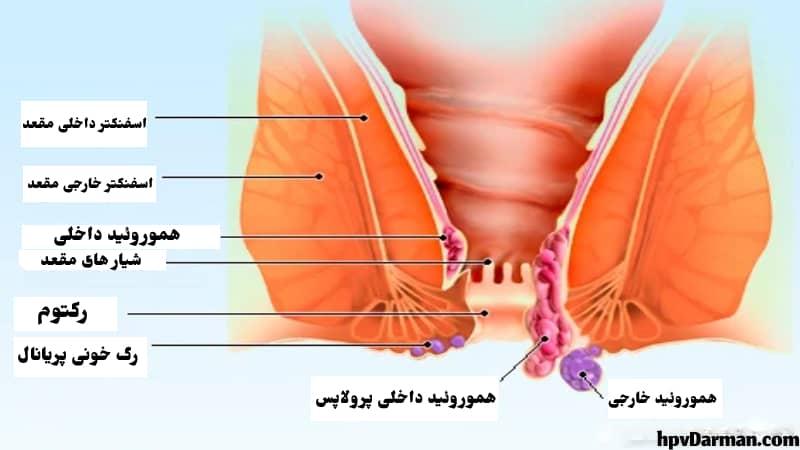 بیماری بواسیر چیست؟