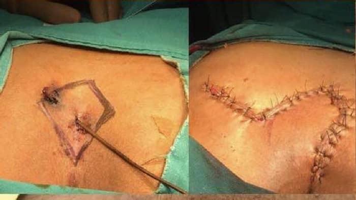 [تصویر:  pilonidal-cyst-surgery.jpg]