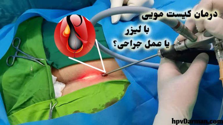 عکس درمان کیست مویی یا پیلونیدال با لیزر