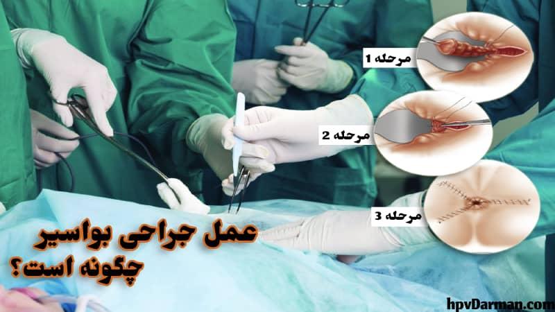 عکس جراحی هموروئید