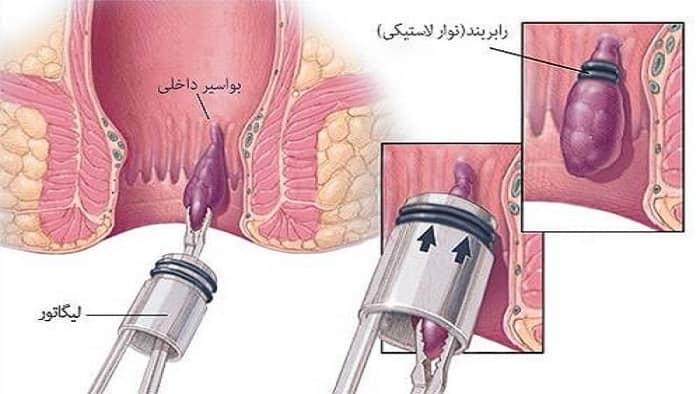 عکس درمان بواسیر با رابربند